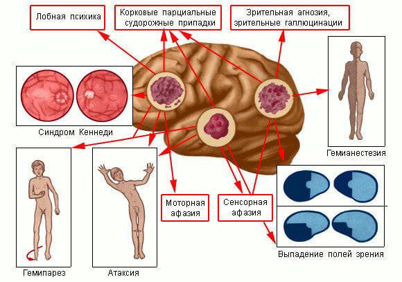simptomy