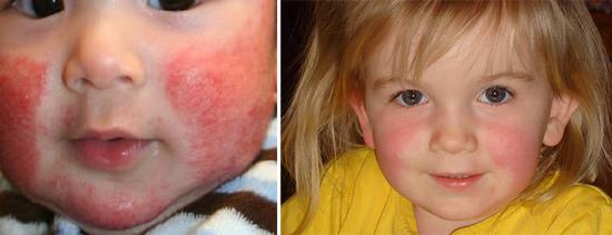 сыпь на лице при диатезе и скарлатине