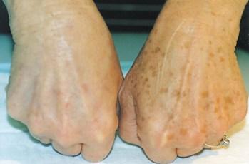 skintreatment-scarspigmentation_5