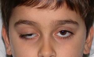 нарушение щели глаза