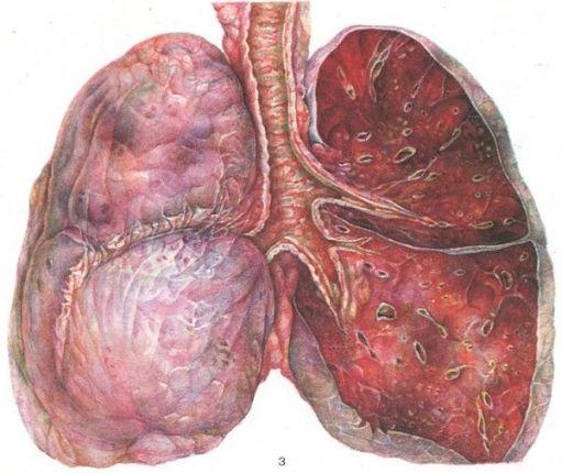 Вид легких при заболевании трехеобронхитом