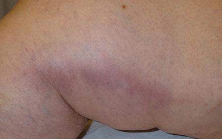 Симптомы поражения сосуда, фото 2