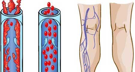 Симптомы тромбоза глубоких вен нижних конечностей