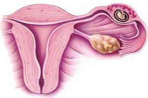 tubal-pregnancy