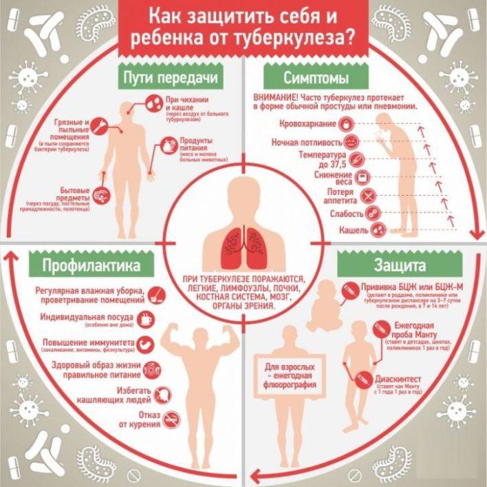 tuberculez2