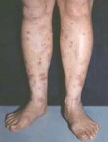 Папулонекротический туберкулез кожи голеней.