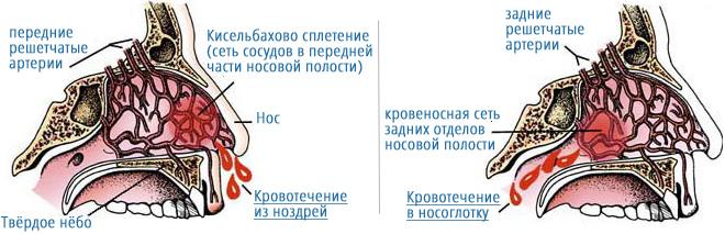 u-vas-iz-nosa-idet-krov_4
