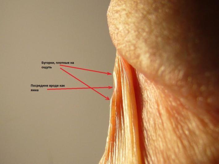 Вуздечка на голівці: фото в нормі і при патології