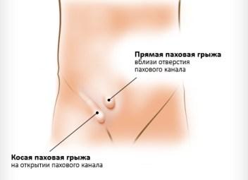 vidy-pahovyh-gryzh