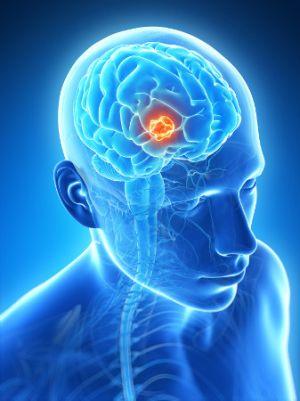 3д модель опухоли