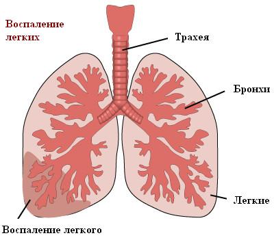 Воспаление легкого (слева).