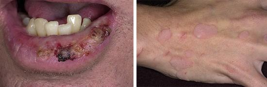 бородавки у лиц со сниженным иммунитетом
