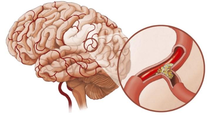 Спазм сосудов головного мозга: причины, симптомы, лечение