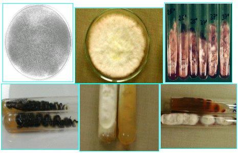 Presente y futuro en el diagnstico de las micosis