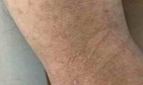 花粉症によるかゆみ湿疹