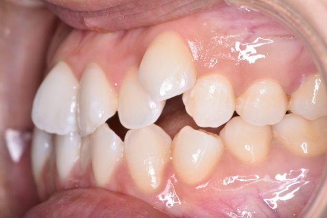 八重歯や、前歯のガタツキ