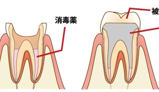 抜歯の方が簡単なのに…あえて「神経を抜く」メリットとは?