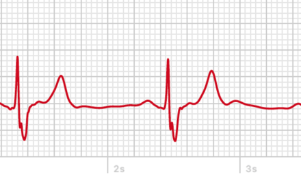 EKG mit der Apple Watch