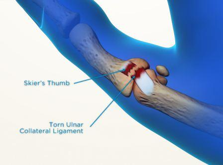 Ulnar collateral ligament injury of thumb MCP joint