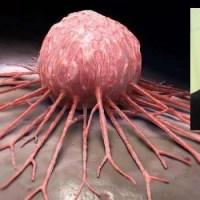Entro 3 anni la Campania avrà il vaccino contro il cancro, la speranzosa dichiarazione di De Luca