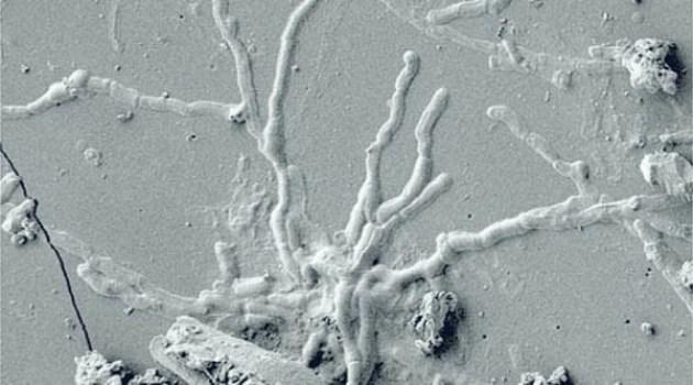 Ercolano – Cultura. Scoperti i neuroni di una vittima dell'Eruzione del Vesuvio ad Ercolano