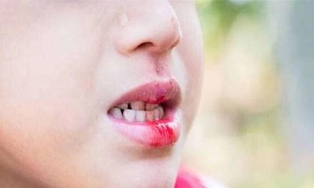 Bambino di 11 anni picchiato, truffa sull' assicurazione