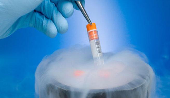 Cryopreservation