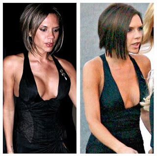 Victoria-Beckham-Breast-Reduction