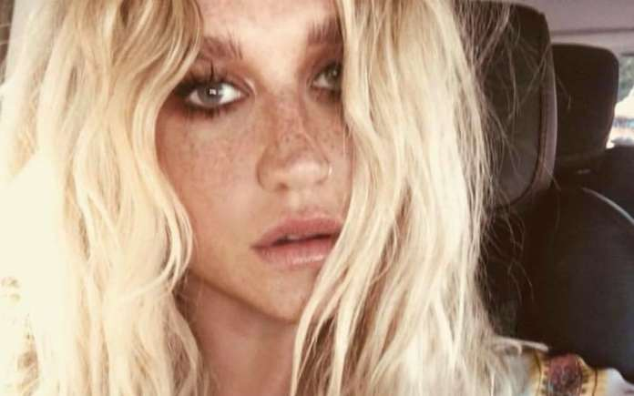 Kesha rivela a Lady Gaga che Dr. Luke ha abusato di Katy Perry
