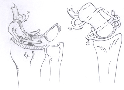 Radial-Sided Wrist Pain: The Scapholunate Ligament Injury