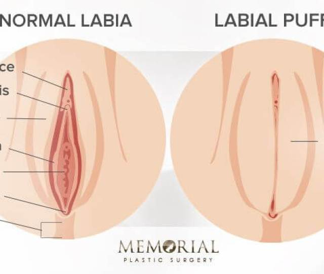 Labial Puff Before And After Diagram
