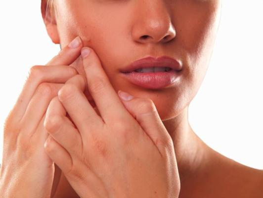 Acne and how to prevent it