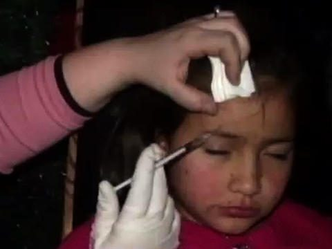 Would You Give Botox To Your 8 Year Old?