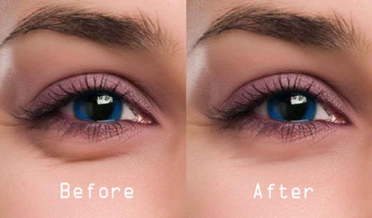 Tips to Get Rid of Your Dark Under Eye Bags