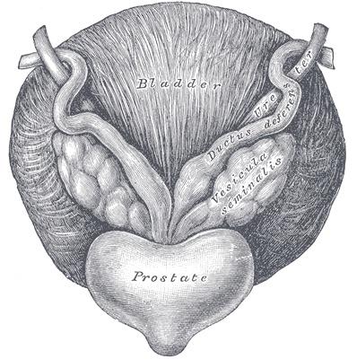 preparacion antes de una biopsia de prostata