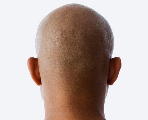 La calvicie se relaciona con mayor riesgo de cáncer de próstata