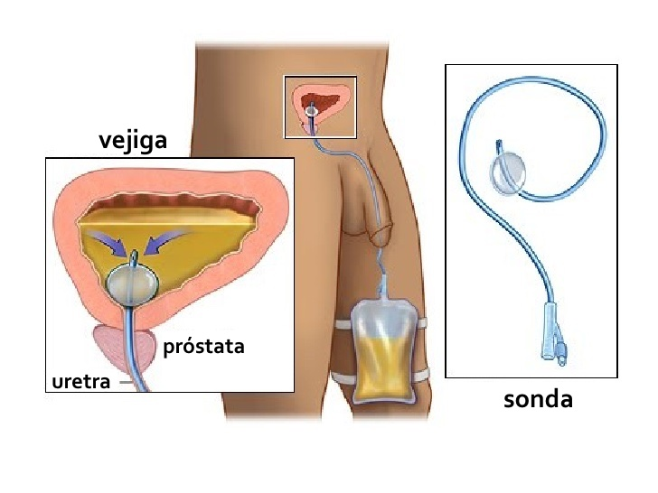 que causa la prostata en el hombre