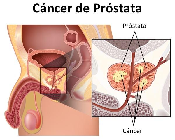 ¿Hemos tratado innecesariamente muchos casos de cáncer de próstata? Tiempo para la vigilancia activa