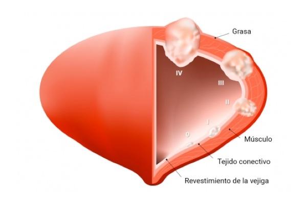 Hematuria: sangre en la orina. ¿Es peligroso?