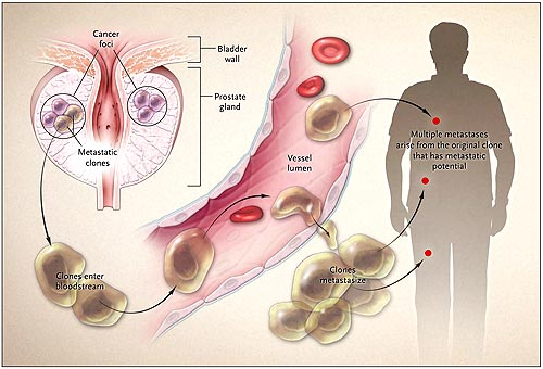 cáncer de próstata metastásico agresivo