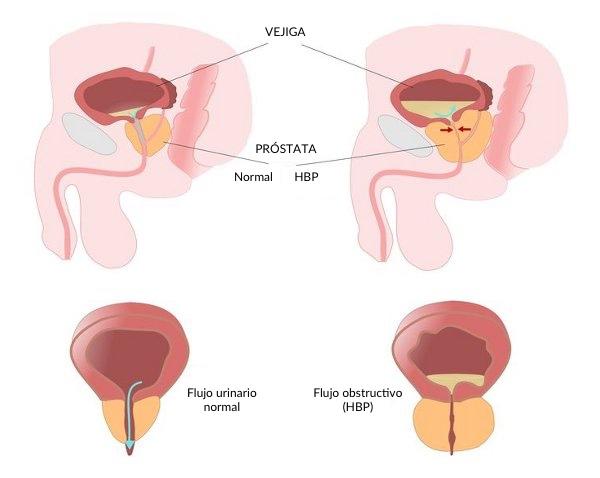 La eyaculación retrógrada causa infección de la vejiga.