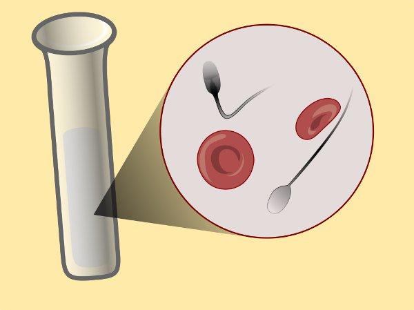 prostatitis de sangre de esperma