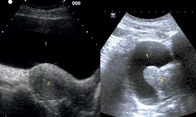 ¿Tiene implicaciones tener una próstata con lóbulo medio?