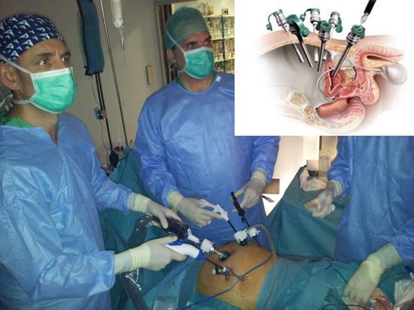 Modalidades de tratamiento del cáncer de próstata