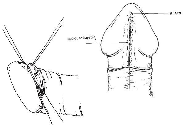 operación del frenillo