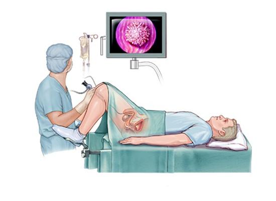 cáncer de próstata y glándula prostática rígida