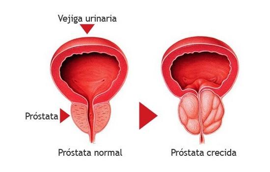 la próstata normal que el tamaño de la salad