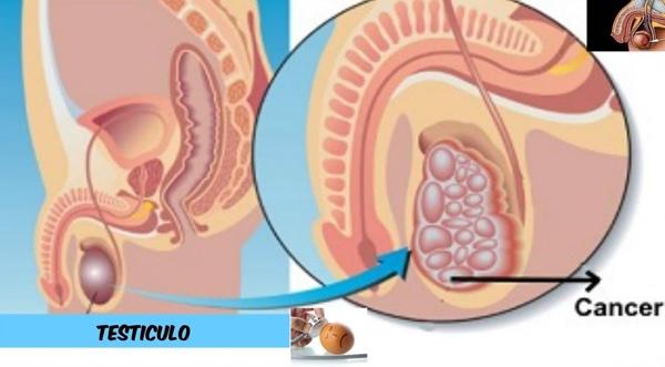 Aumento de los tumores de testículo en los países desarrollados