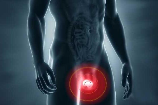 dolor de testículos