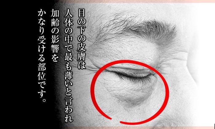 目の下の皮膚は人体のかで最も薄いと言われ、加齢の影響をかなり受ける部位です